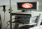 日本奥林巴斯电子喉镜